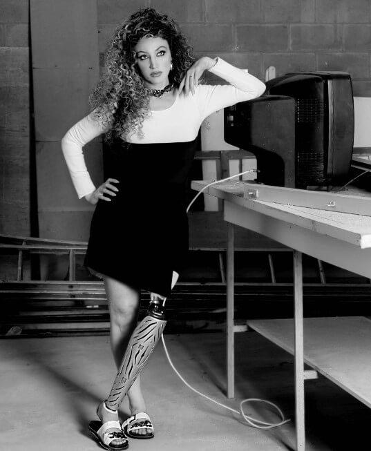 Modelo deficiente, que utiliza perna mecânica no lado esquerdo. Ela está utilizando um tamanco, tipo rasteira preto e branco.